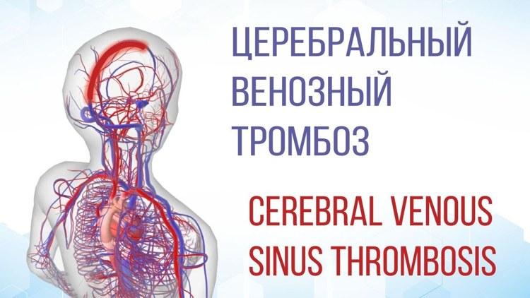 церебральные тромбозы